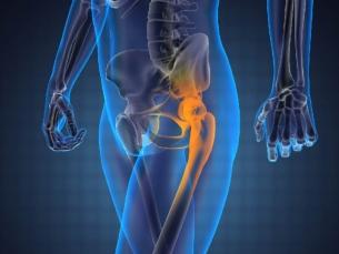 Dez sinais sutis do câncer ósseo que você deve prestar muita atenção