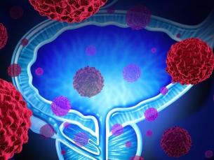Câncer de próstata mata mais de 17 mil pessoas por ano no Brasil