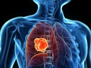 Atualização do Rol da ANS melhora tratamento do câncer de pulmão