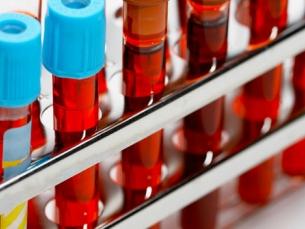 Exame de sangue para câncer encontra oito tipos de tumores