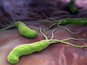 Câncer de estômago: tratar bactéria H. pylori reduz risco de complicações