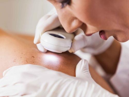 Apesar do clima, região sul é a com maior número de casos de câncer de pele