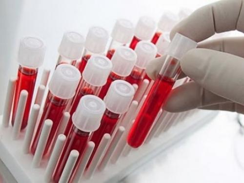 """""""Biópsia líquida"""" pode diagnosticar câncer sem dor"""