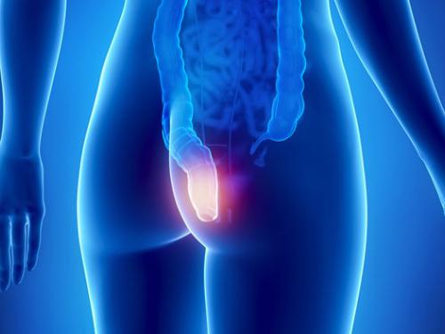 Câncer de reto: novo tratamento descarta cirurgia