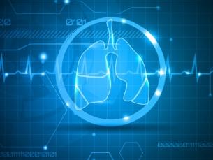 Mortalidade por câncer de pulmão entre mulheres deve aumentar 43% até 2030