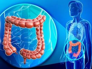 Prevenção e diagnóstico do câncer colorretal nos dias de hoje