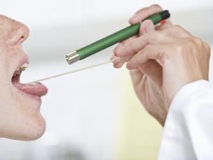 Proteína pode indicar risco de morte pelo câncer de boca