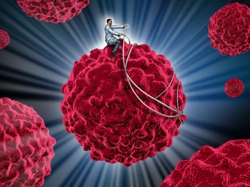 Imunoterapia é eficaz no tratamento contra o câncer de mama, indica estudo