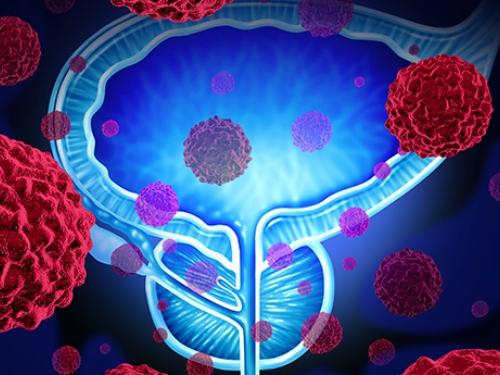 A importância de se prevenir contra o câncer de próstata