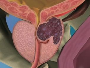 Prevenção contra o câncer de próstata deve se transformar em rotina a ser seguida