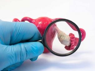 Ficar saciada com pouca comida é sintoma oculto deste tipo de câncer feminino
