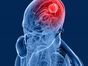 Saiba quais são os sintomas de câncer no cérebro