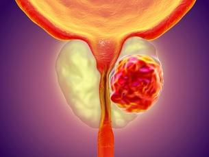 União de terapias contra câncer de próstata aumenta sobrevida de pacientes