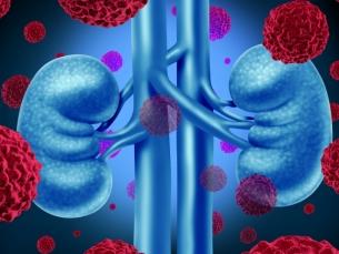 Os avanços no tratamento do câncer renal e a dificuldade de acesso no Brasil