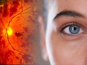 É possível ter câncer nos olhos. Exposição ao sol é fator de risco