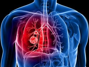 Radioterapia ultrapotente é testada em câncer de pulmão para evitar cirurgia