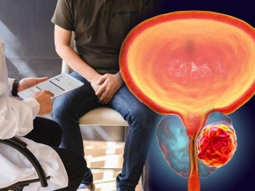Câncer de mama masculino: informação para reduzir a mortalidade!