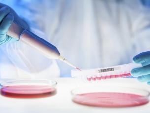 Cientistas britânicos descobrem células universais que podem curar vários tipos de câncer