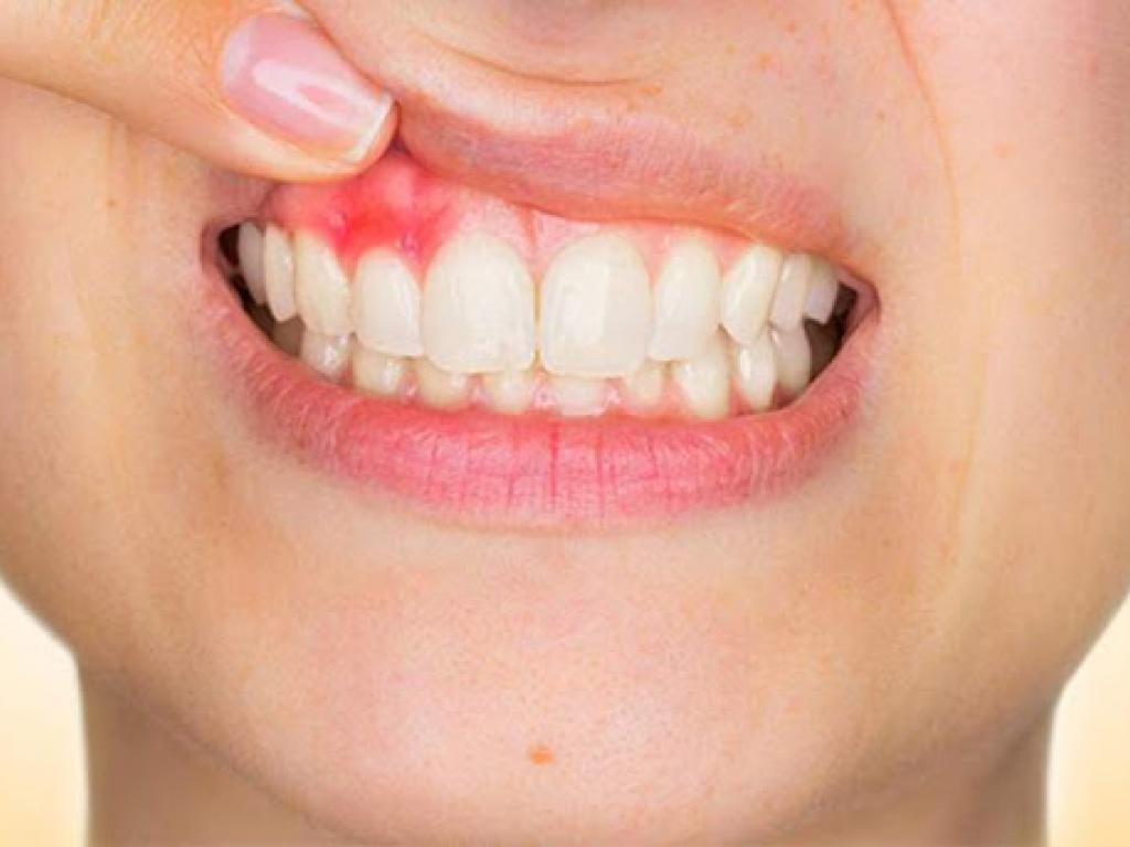 Cancer bucal historia natural, 177 Diagnóstico de Cáncer Bucal lingua hpv na boca