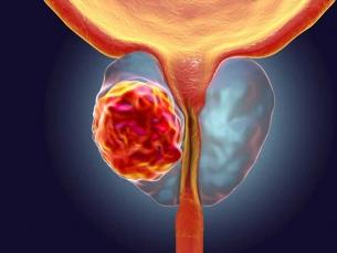 Câncer de próstata ainda é uma das principais causas de mortes entre homens