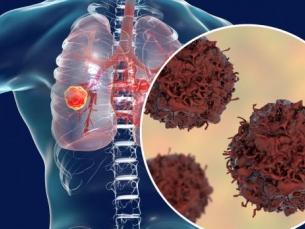 Diagnóstico precoce do câncer de pulmão aumenta chances de cura para 90%